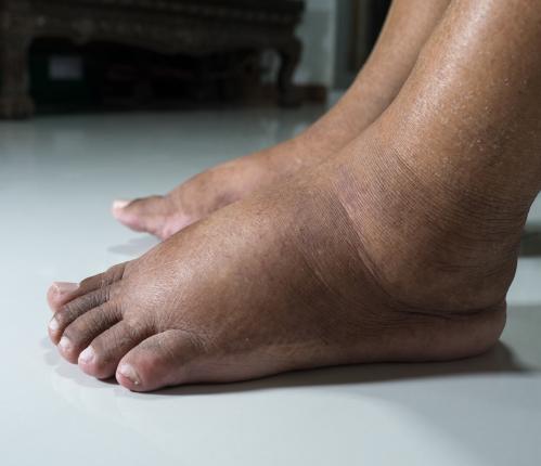 soin pied diabetique bruay la buissiere